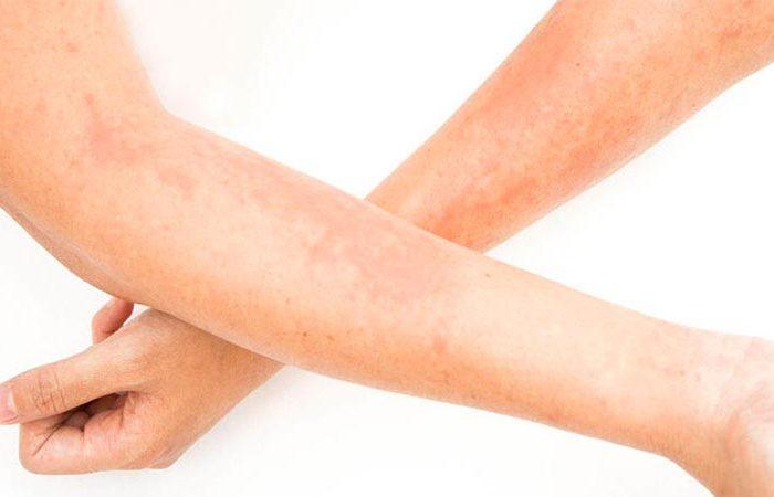 Alergia al sudor, remedios caseros